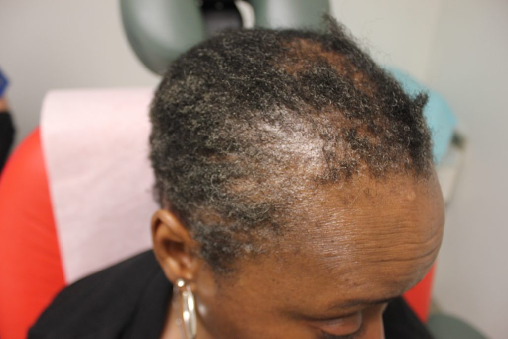 Before Dr.UGro Natural Hair Pomade, Diane's Hair on her edges and temples were short, lacking in volume and fullness and breaking