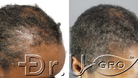 Within 3 months of starting Dr.UGro Gashee Diane's hair health had been restored in her edges*