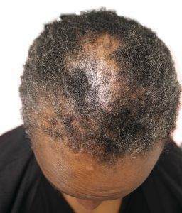 Before Dr.UGro Natural Hair Pomade, Diane's hair on top was short, lacking in volume and fullness and breaking