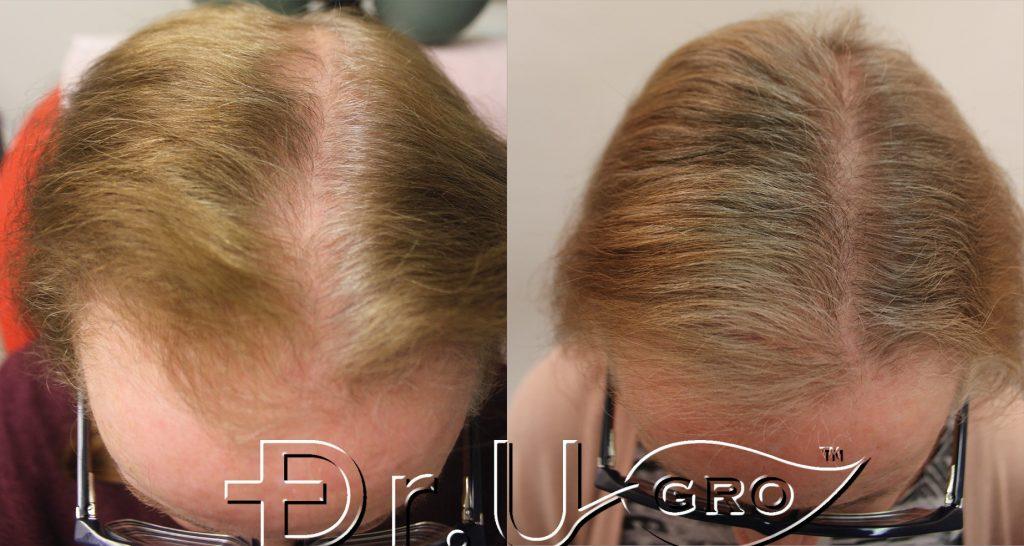 Gashee Natural Hair Oil real life transformations: Hair fullness and hair health improvement