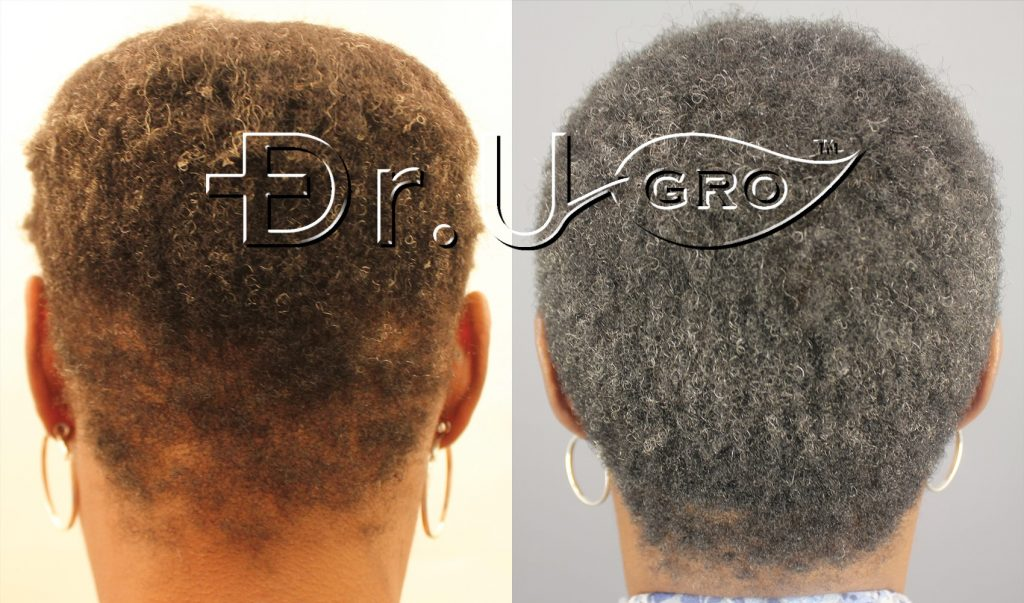Within 3 months of starting Dr.UGro Gashee Diane's hair was fuller and longer all over