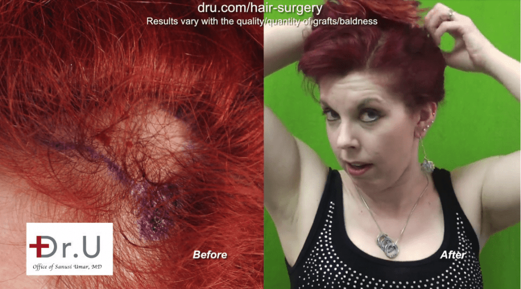 Hair transplant surgery helped this female patient recover from hair loss caused by traction alopecia