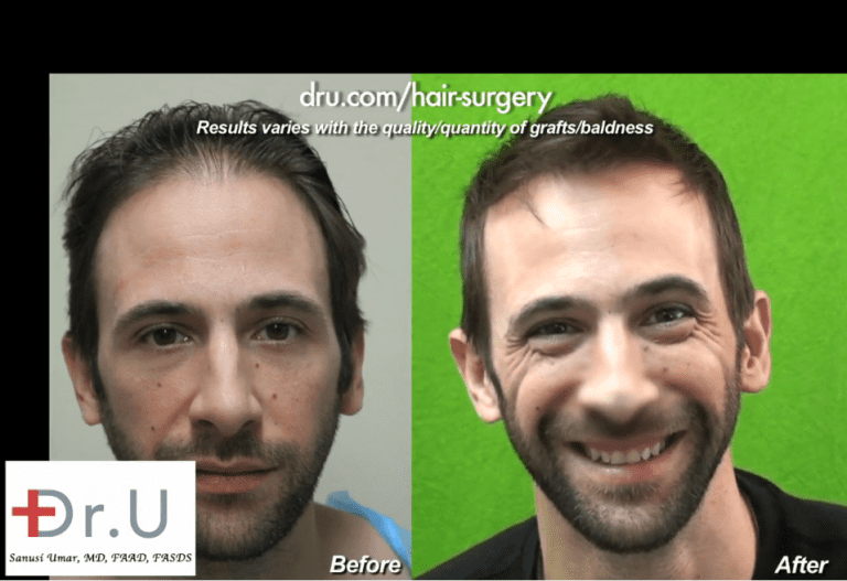 Los Angeles actor, Bernardo de Paula achieved an exceptionally natural-looking hairline after his hair transplant surgery
