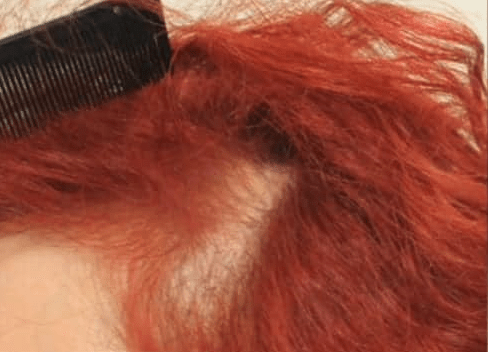 Traction alopecia hair loss shown in the temple region