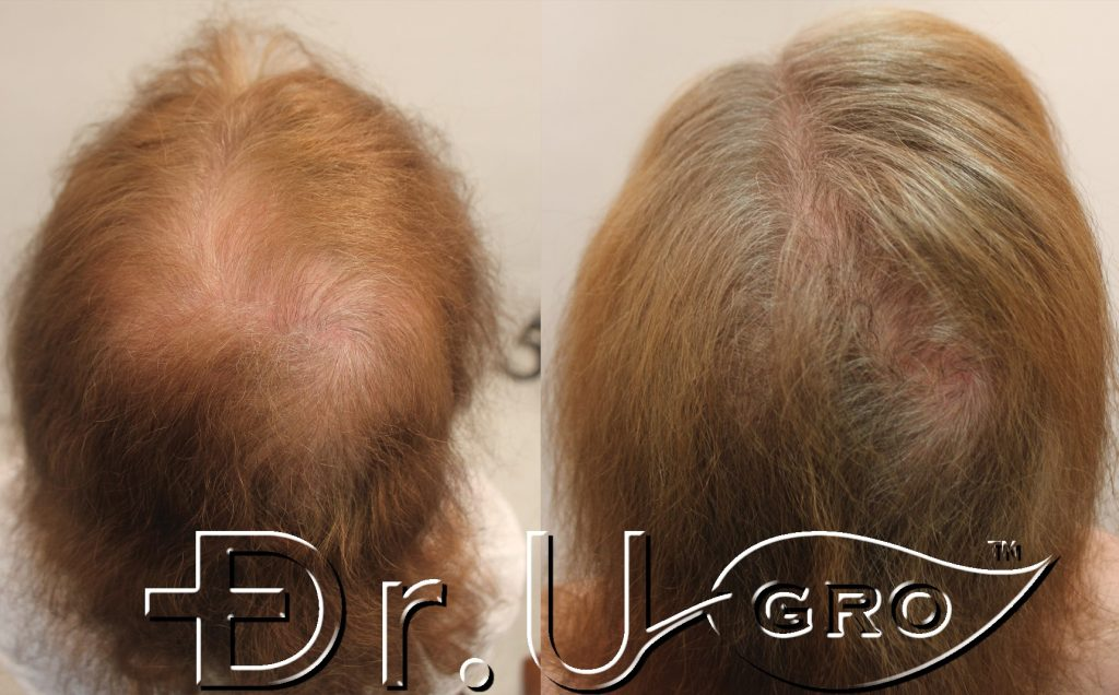 Dr. UGro Gashee all-natural hair growth results: before on the left and after on the right.