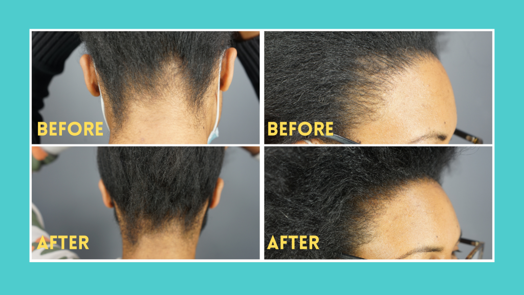 Keratin for hair before and after results - Dr.UGro Gashee Hair Growth Products