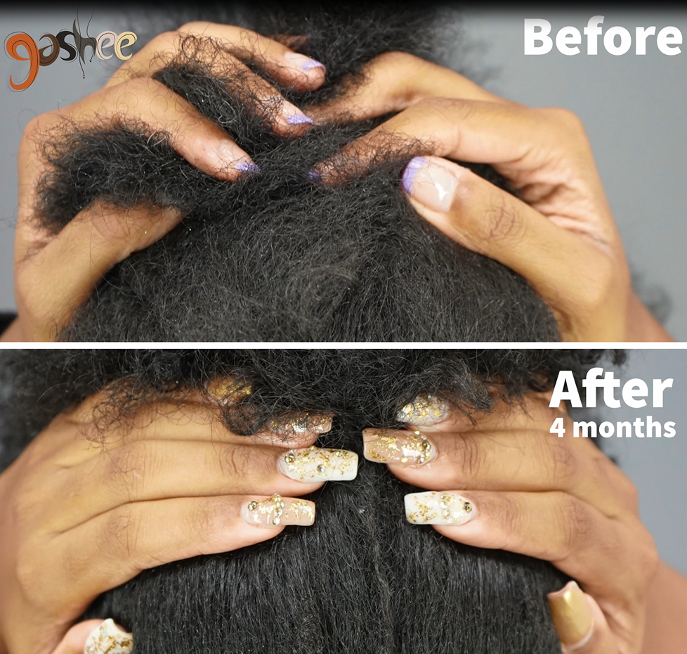 Before and after hair growth results of Dr. UGro Gashee Oral Supplements after 4 months of treatment.